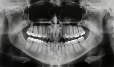 Dental X-Ray.