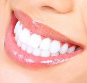 white smile des moines 1