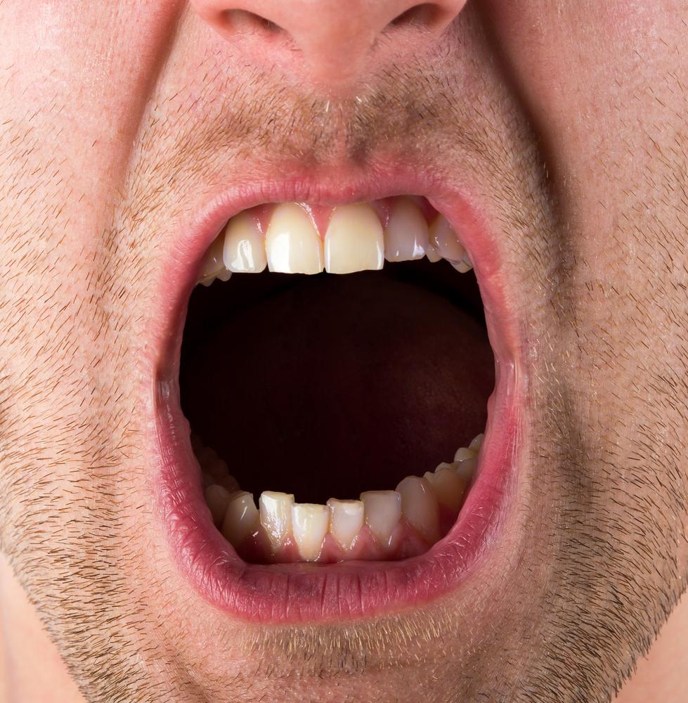 oral-krupno